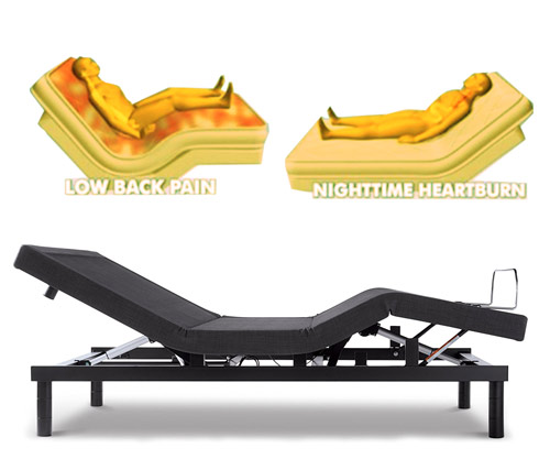 Adjustable Beds and Back Pain